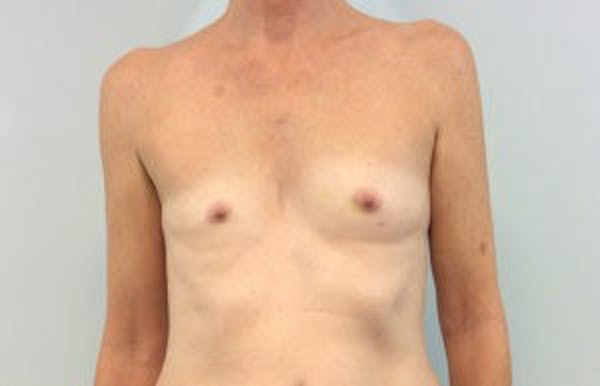 Breast Reconstruction Gallery - Patient 4594933 - Image 1