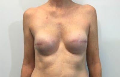 Breast Reconstruction Gallery - Patient 4594933 - Image 2