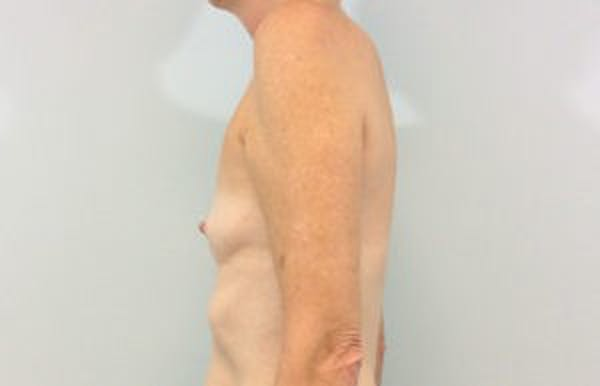 Breast Reconstruction Gallery - Patient 4594933 - Image 3