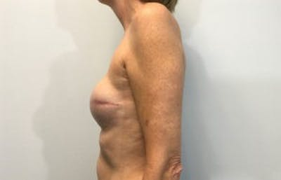 Breast Reconstruction Gallery - Patient 4594933 - Image 4