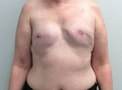 Breast Reconstruction Gallery - Patient 4594934 - Image 1
