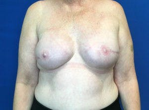 Implant Reconstruction Gallery - Patient 4715944 - Image 2