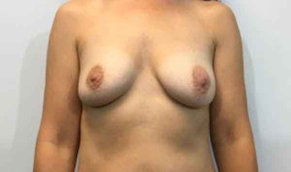 Breast Implant Reconstruction Gallery - Patient 45391197 - Image 1