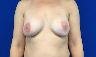 Breast Implant Reconstruction Gallery - Patient 45391197 - Image 2