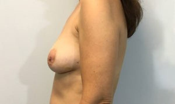 Breast Implant Reconstruction Gallery - Patient 45391197 - Image 3