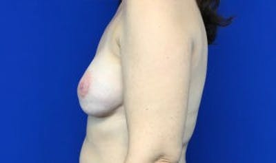 Breast Implant Reconstruction Gallery - Patient 45391197 - Image 4