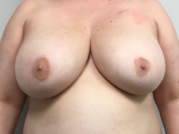 Breast Reconstruction Gallery - Patient 4594936 - Image 1