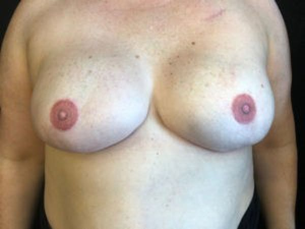 Breast Reconstruction Gallery - Patient 4594936 - Image 2