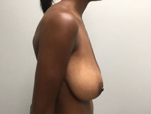 Breast Reduction Gallery - Patient 4594937 - Image 3