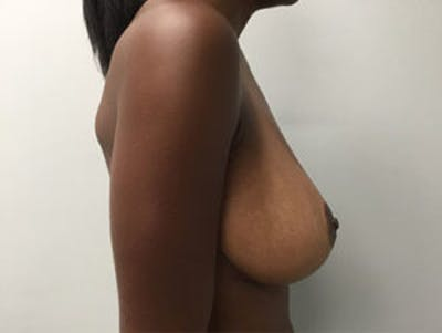Breast Reduction Gallery - Patient 4594937 - Image 4