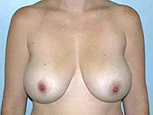 Breast Reduction Gallery - Patient 4594938 - Image 1