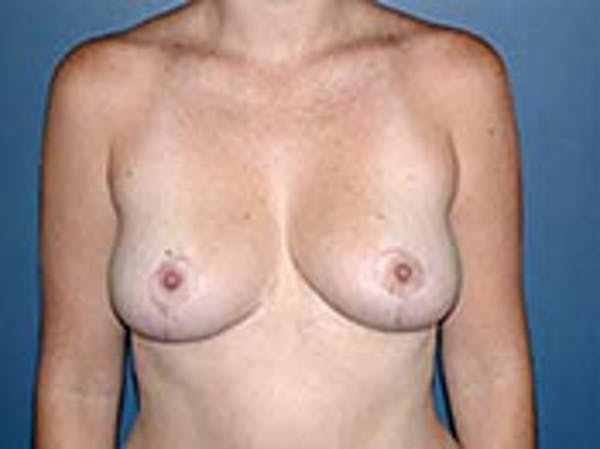 Breast Reduction Gallery - Patient 4594938 - Image 2