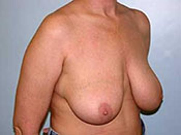 Breast Reduction Gallery - Patient 4594939 - Image 1