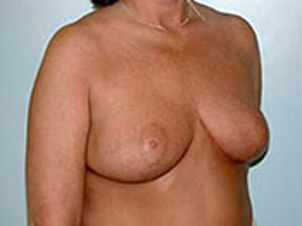 Breast Reduction Gallery - Patient 4594939 - Image 2