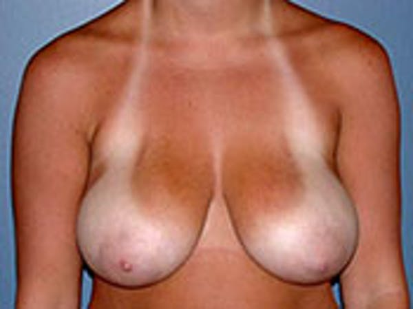 Breast Reduction Gallery - Patient 4594940 - Image 1