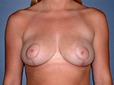 Breast Reduction Gallery - Patient 4594940 - Image 2