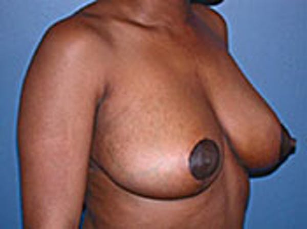 Breast Reduction Gallery - Patient 4594941 - Image 2