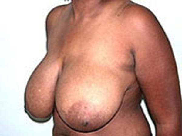 Breast Reduction Gallery - Patient 4594942 - Image 1