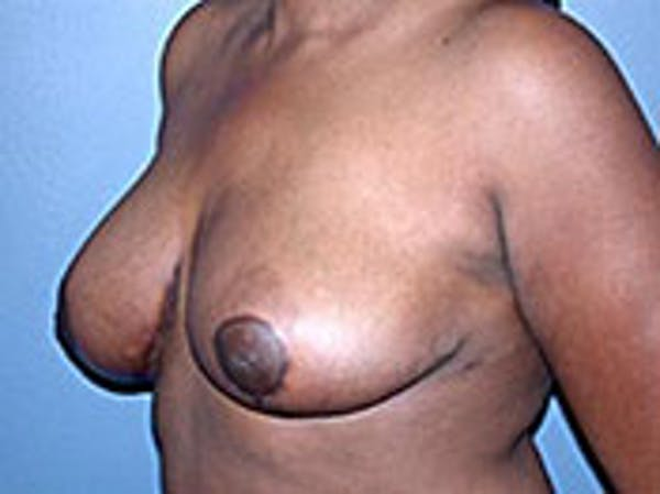 Breast Reduction Gallery - Patient 4594942 - Image 2