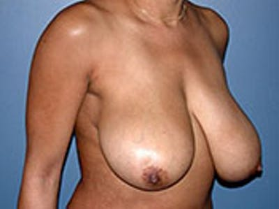 Breast Reduction Gallery - Patient 4594943 - Image 1