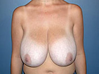 Breast Reduction Gallery - Patient 4594944 - Image 1