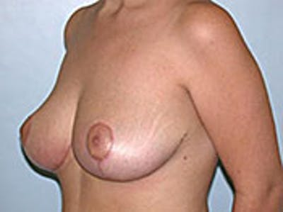 Breast Reduction Gallery - Patient 4594944 - Image 2