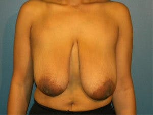 Breast Reduction Gallery - Patient 4594945 - Image 1