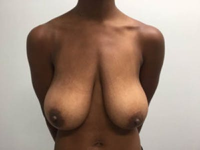 Breast Reduction Gallery - Patient 4594937 - Image 1