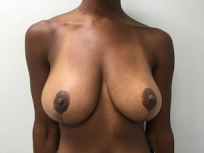 Breast Reduction Gallery - Patient 4594937 - Image 2