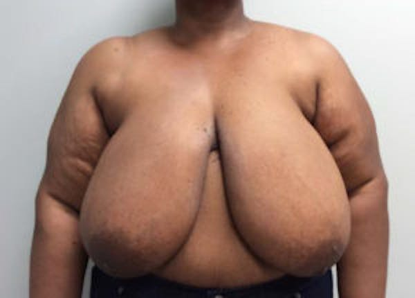 Breast Reduction Gallery - Patient 4594947 - Image 1