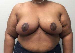 Breast Reduction Gallery - Patient 4594947 - Image 2