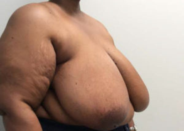 Breast Reduction Gallery - Patient 4594947 - Image 3