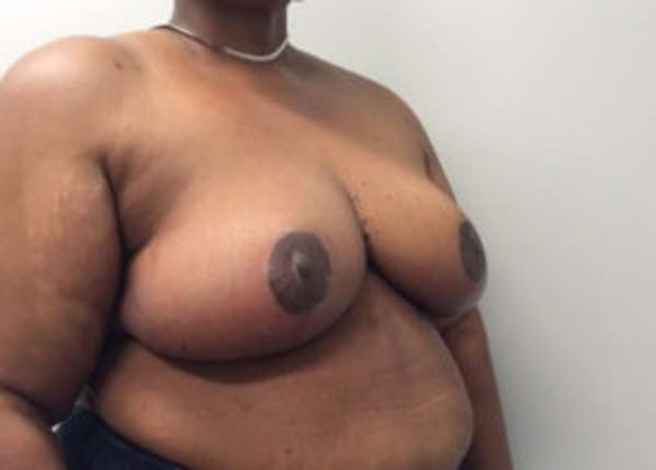 Breast Reduction Gallery - Patient 4594947 - Image 4