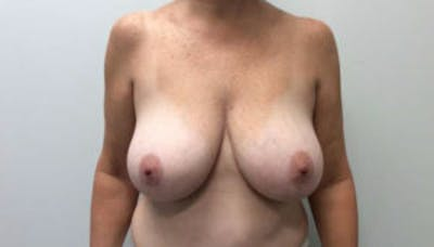 Breast Reduction Gallery - Patient 4594948 - Image 1