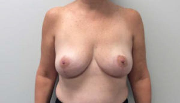 Breast Reduction Gallery - Patient 4594948 - Image 2