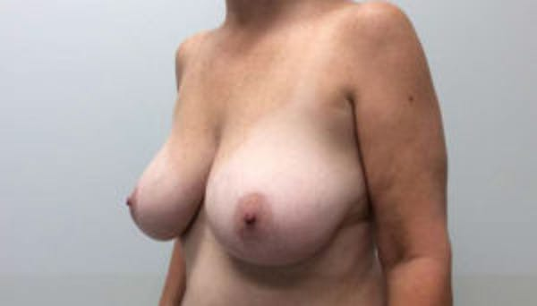 Breast Reduction Gallery - Patient 4594948 - Image 3