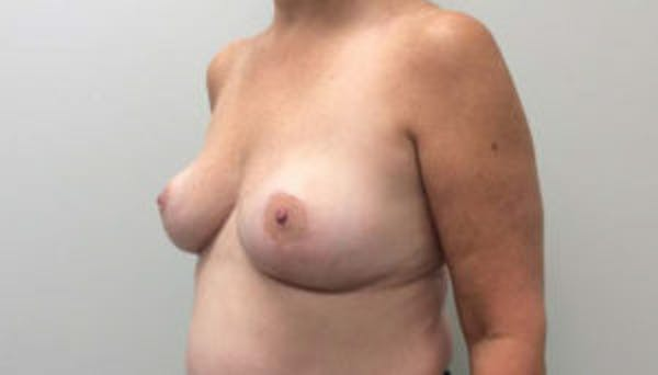 Breast Reduction Gallery - Patient 4594948 - Image 4