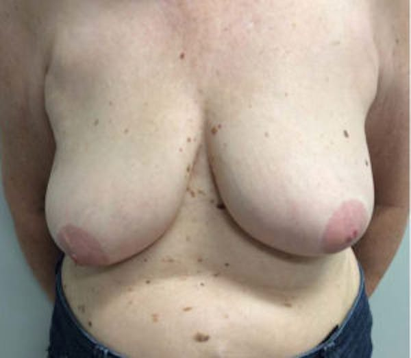 Breast Reduction Gallery - Patient 4594950 - Image 1
