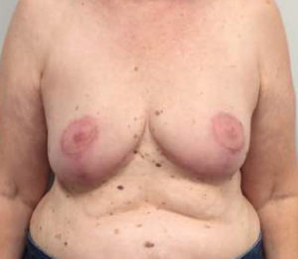 Breast Reduction Gallery - Patient 4594950 - Image 2