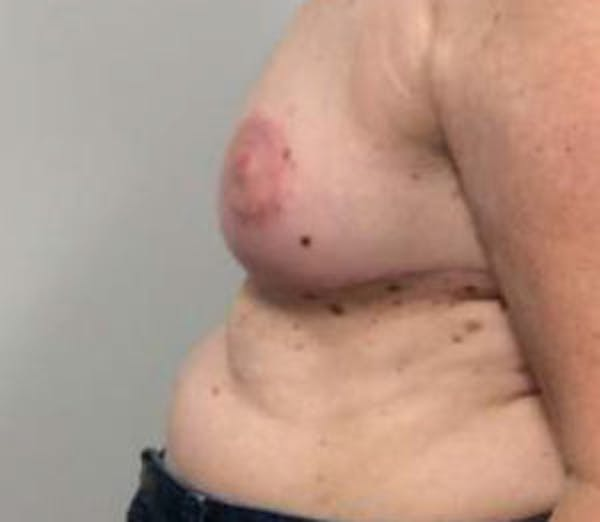 Breast Reduction Gallery - Patient 4594950 - Image 4