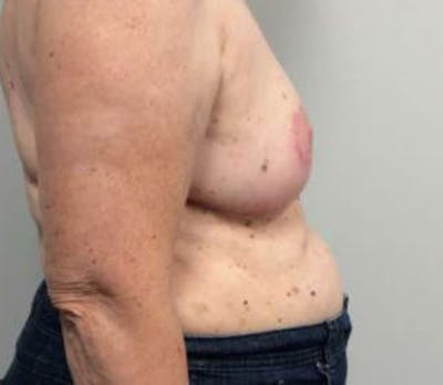 Breast Reduction Gallery - Patient 4594950 - Image 6