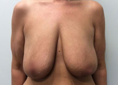 Breast Reduction Gallery - Patient 4594951 - Image 1