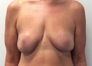 Breast Reduction Gallery - Patient 4594951 - Image 2