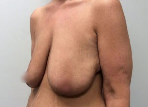Breast Reduction Gallery - Patient 4594951 - Image 3