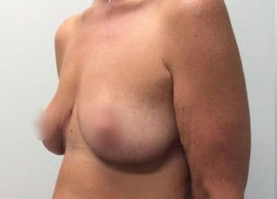Breast Reduction Gallery - Patient 4594951 - Image 4
