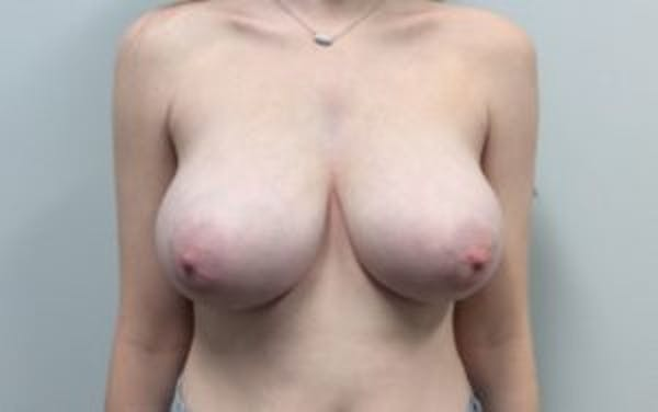 Breast Reduction Gallery - Patient 4594952 - Image 1