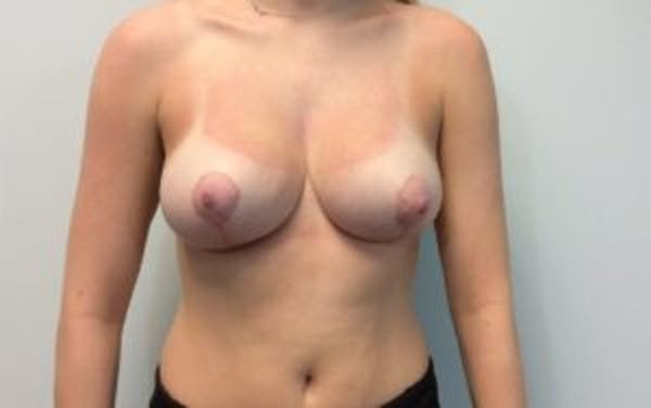Breast Reduction Gallery - Patient 4594952 - Image 2