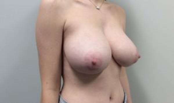 Breast Reduction Gallery - Patient 4594952 - Image 3