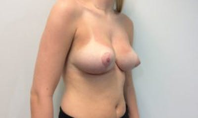 Breast Reduction Gallery - Patient 4594952 - Image 4