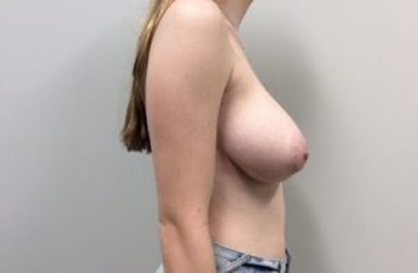 Breast Reduction Gallery - Patient 4594952 - Image 5